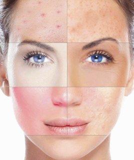 Как определить тип кожи в 2 шага